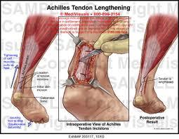 lengthening tendon