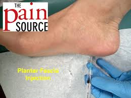 cortisone injection in foot