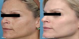 microneedlingbefore and after